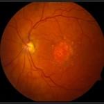 Ηλικιακή εκφύλιση ωχράς ξηρού τύπου: Διακρίνονται παθολογικές λευκωπές εναποθέσεις, που λέγονται drusen. Πρόκειται για κατάλοιπα του μεταβολισμού των ιστών του ματιού, τα οποία δεν απομακρύνονται και συσσωρεύονται. Πηγή: National Eye Institute