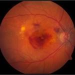 Ηλικιακή εκφύλιση ωχράς ξηρού τύπου: Παρατηρείται ατροφική περιοχή στο κέντρο (ωχρά κηλίδα). Πηγή: National Eye Institute