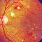 Μετρίου βαθμού διαβητική αμφιβληστροειδοπάθεια: Διακρίνονται διάσπαρτες αιμορραγίες και εξιδρώματα. Τα εξιδρώματα επηρεάζουν και το κέντρο της όρασης (ωχρά κηλίδα). Πηγή: Community Eye Health