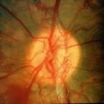Παραγωγική Διαβητική Αμφιβληστροειδοπάθεια: Μεγάλος θύσανος νεοαγγείων πάνω από την οπτική θηλή. Χρήζει άμεσης θεραπείας με laser. Πηγή:National Eye Institute