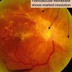 Παραγωγική διαβητική αμφιβληστροειδοπάθεια: Μετά από θεραπεία με laser, παρατηρείται υποστροφή και ίνωση των νεοαγγείων. Πηγή: Community Eye Health
