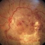 Σοβαρού βαθμού διαβητική αμφιβληστροειδοπάθεια: Διακρίνονται πολλαπλά εξιδρώματα και αιμορραγίες, ιδίως στην περιοχή της ωχράς. Χρήζει άμεσης θεραπείας. Πηγή: Community Eye Health