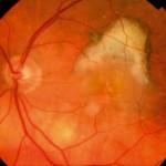 Ηλικιακή εκφύλιση ωχράς υγρού τύπου: Διακρίνεται αιμορραγία στο κέντρο (ωχρά κηλίδα). Αυτή προκαλείται από παθολογικά αγγεία (νεοαγγειακή μεμβράνη) που αναπτύσσονται σε αυτή τη μορφή της νόσου και καταστρέφουν σύντομα, αν αφεθούν χωρίς θεραπεία, το κέντρο της όρασης. Πηγή: National Eye Institute